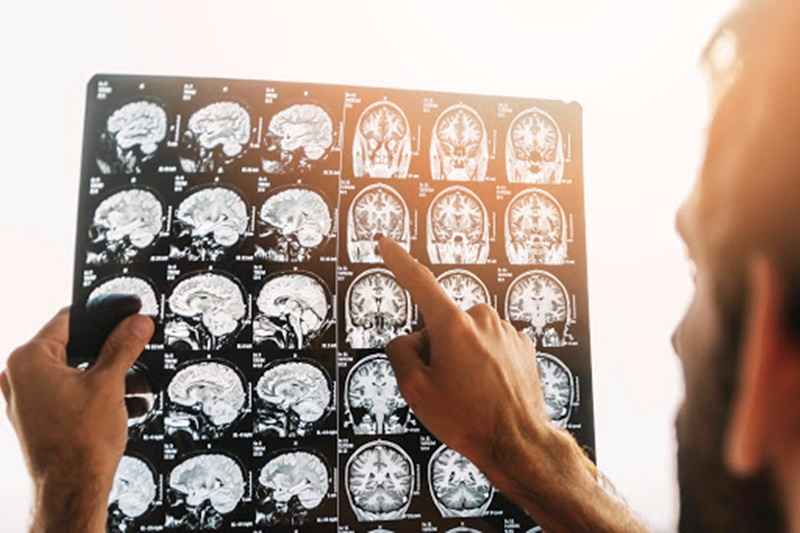 Maio Cinza: um alerta para o câncer de cérebro